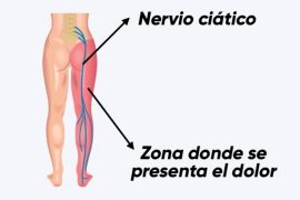 Localización dolor del nervio ciático