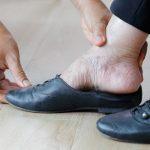 Cuidado pies de personas mayores
